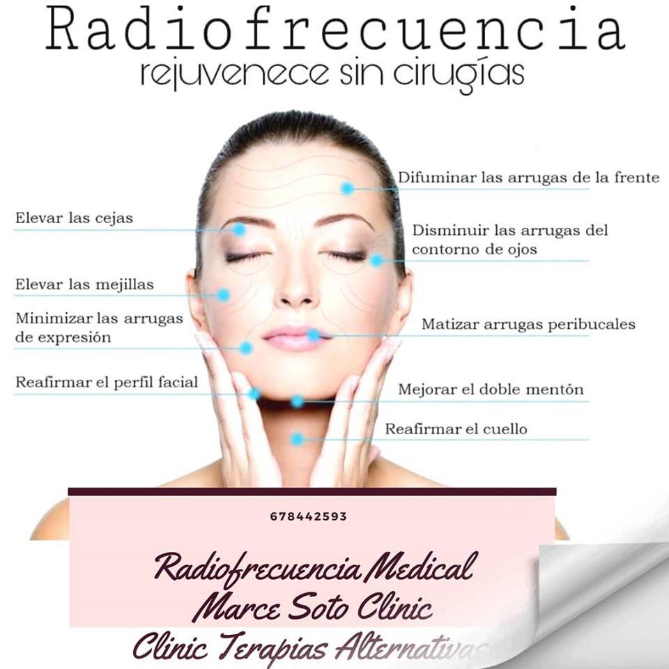Radiofrecuencia Facial Murcia